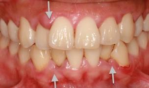 dor-de-dente-gengiva-inchada-01