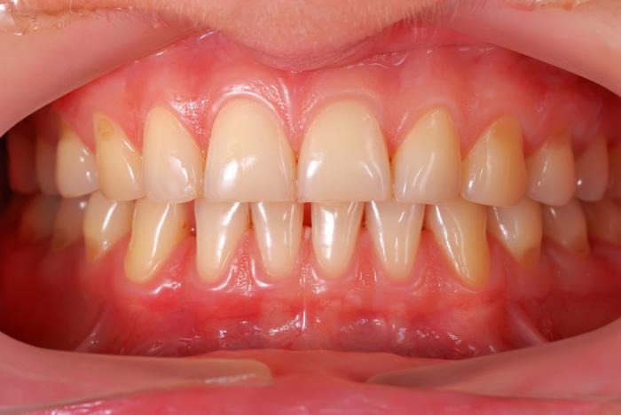 dor-de-dente-gengiva-inchada-02