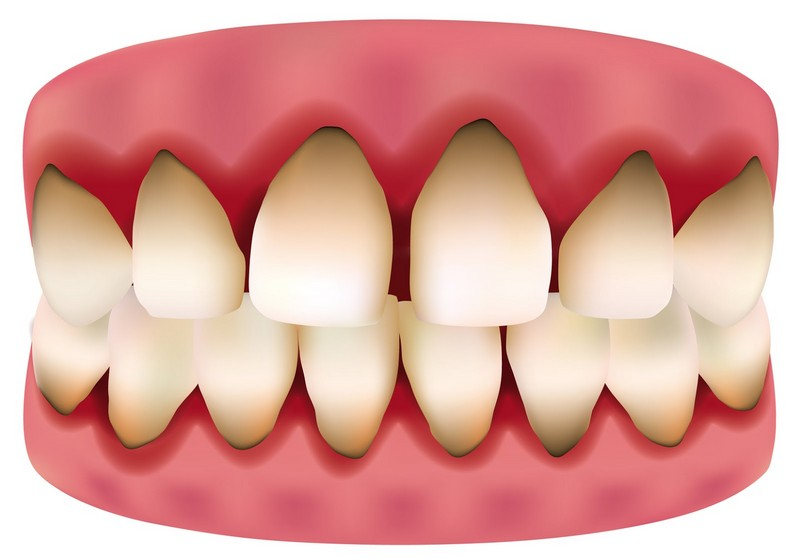 dor-de-dente-gengiva-inchada-03