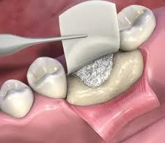 enxerto-ósseo-odontologia-03