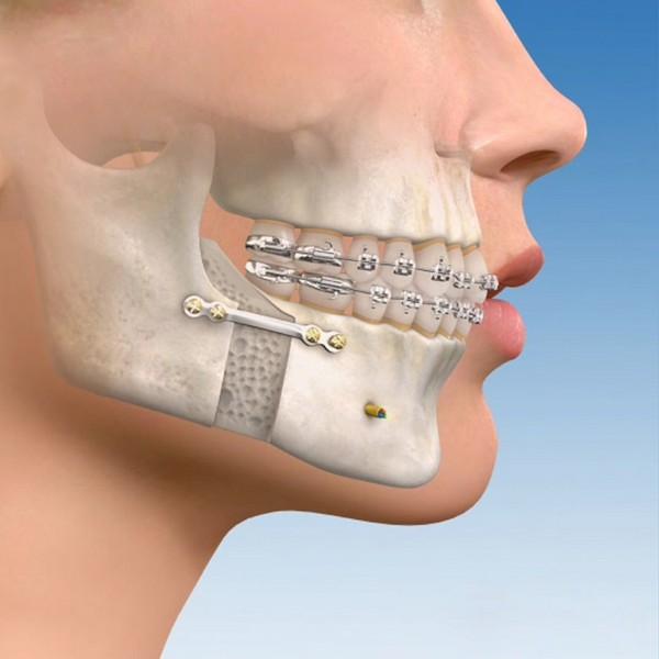 enxerto-ósseo-para-implante-01