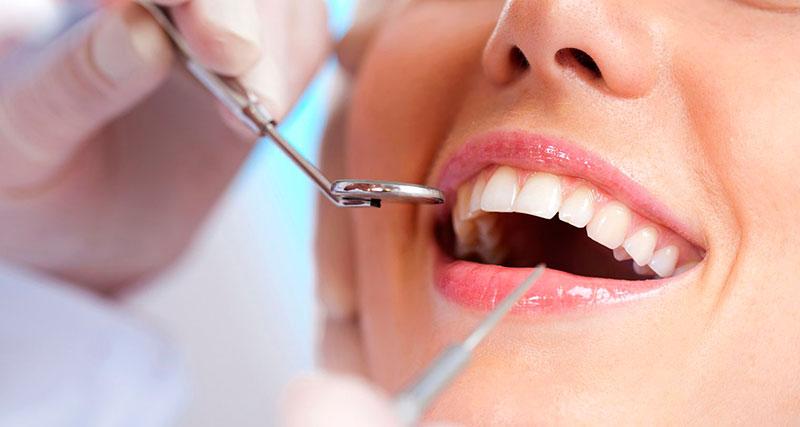 extração-dente-siso-preço-01