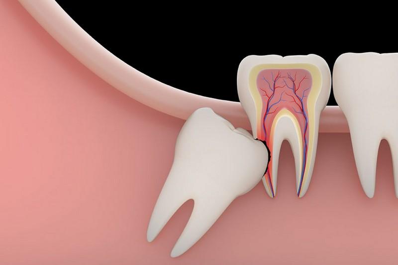extração-do-dente-do-siso-01