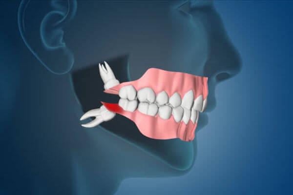 extração-do-dente-do-siso-03