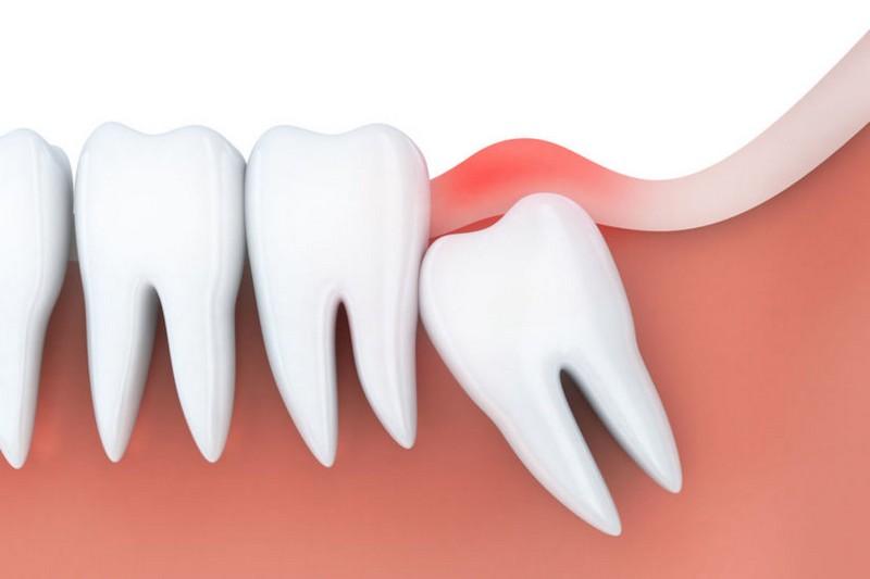 extração-do-dente-siso-01