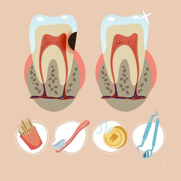Por-que-fazer-canal-no-dente?-01