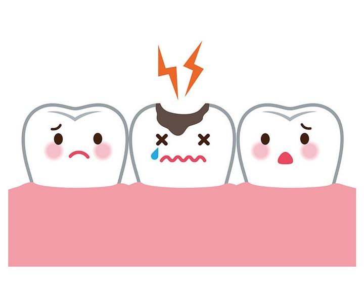 Por-que-fazer-canal-no-dente?-02