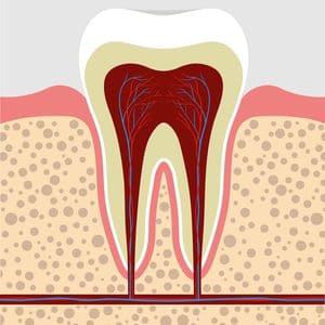 implante-com-enxerto-ósseo-03