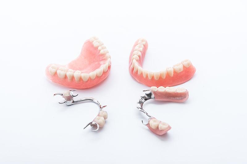 Saiba-tudo-sobre-implante-de-dentadura-02