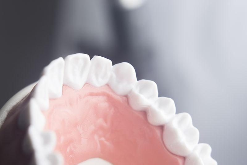 implante-dentário-03