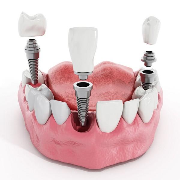implante-dentário-passo-a-passo-01