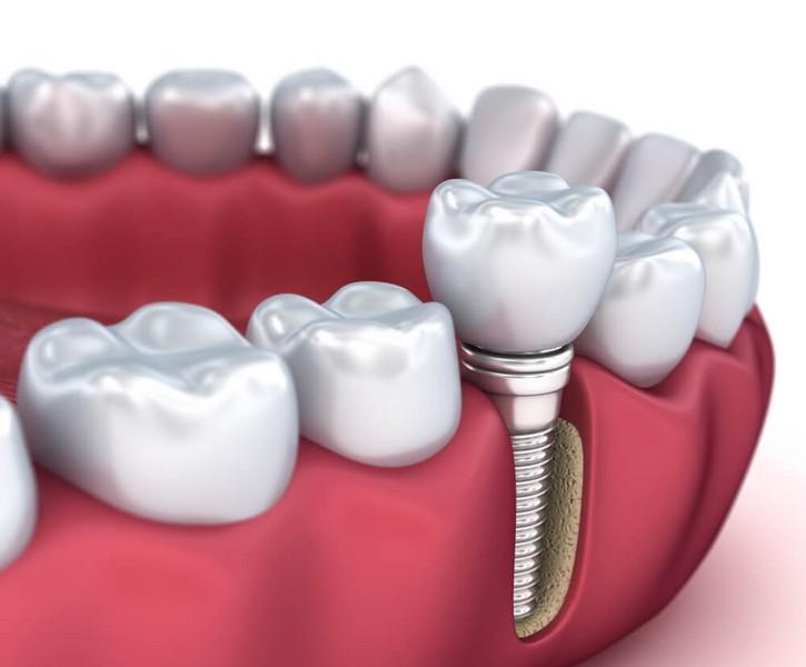 implante-dentário-preço-médio-01