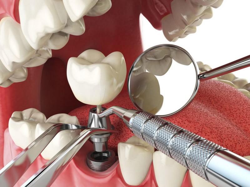 implante-dentário-preço-médio-03