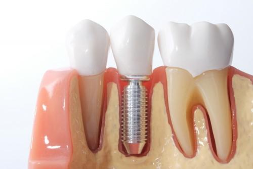 implante-imediato-03
