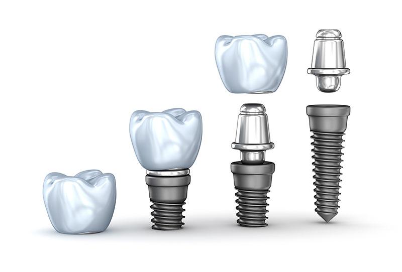 implante-protocolo-01