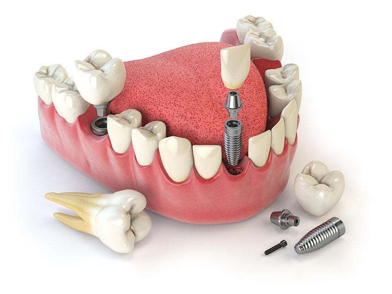 implante-protocolo-02
