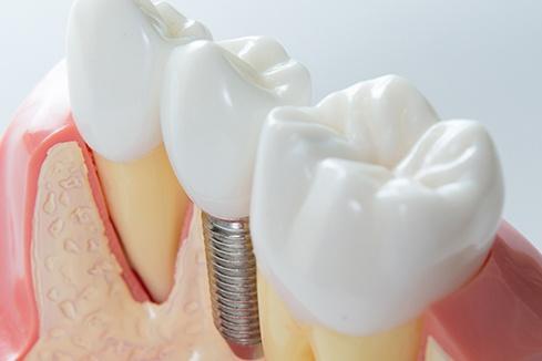 implantes-detalhes-02