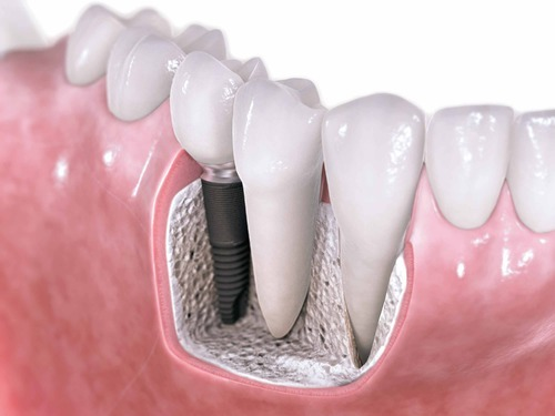 implantes-detalhes-03
