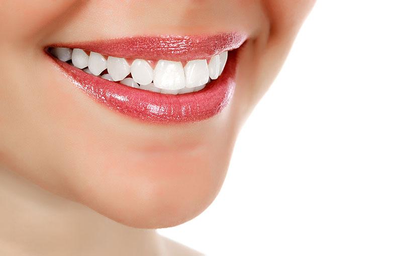 limpeza-dos-dentes-preço-01