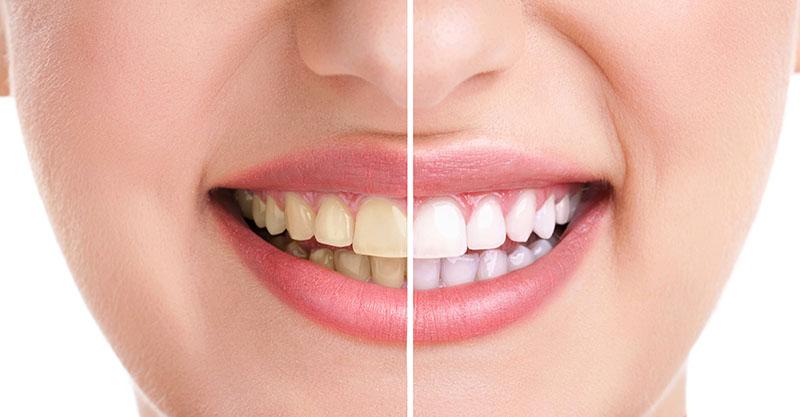limpeza-dos-dentes-preço-02