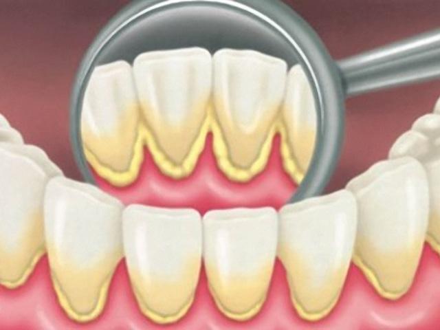 limpeza-dos-dentes-tártaro-03