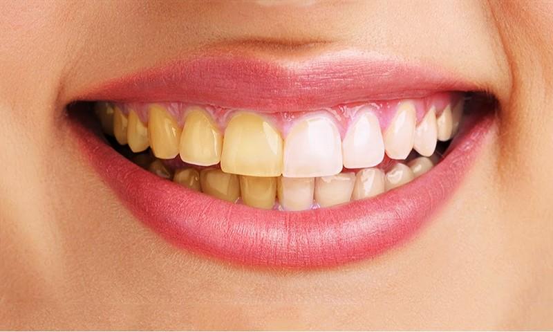 mancha-amarela-no-dente-permanente-01