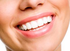 mancha-amarela-no-dente-permanente-02
