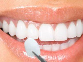 mancha-amarela-no-dente-permanente-03