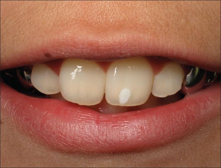 mancha-branca-no-dente-de-leite-03