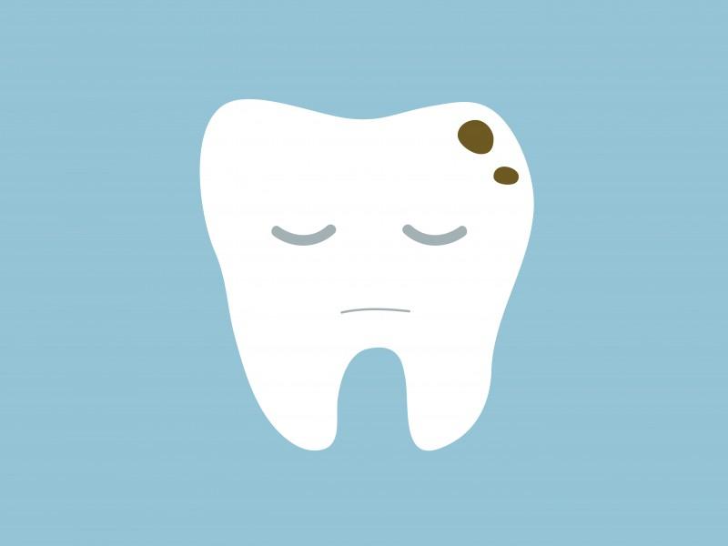 mancha-escura-no-dente-03