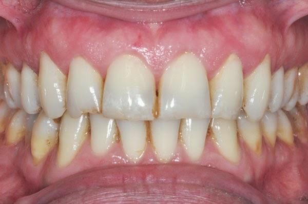 mancha-marrom-no-dente-01