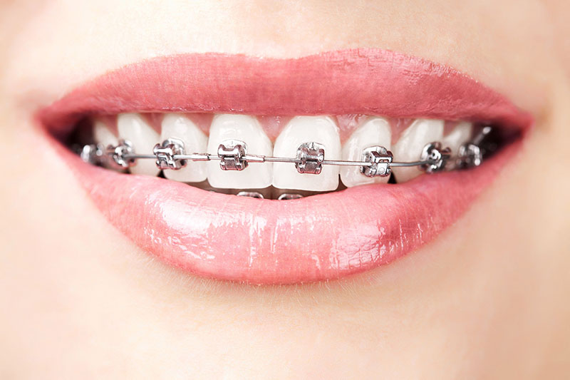 odontologia-ortodontia-01