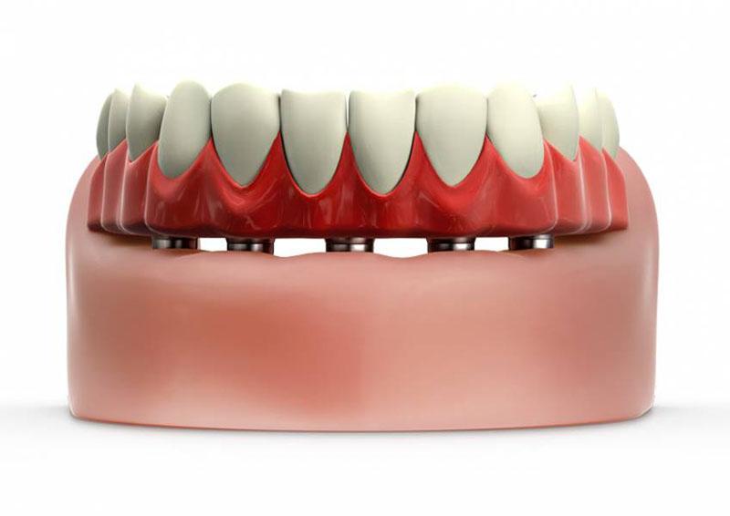 osso-para-enxerto-odontológico-02