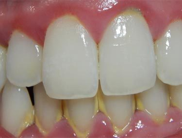 periodontite-como-tratar-01