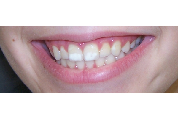 placa-branca-no-dente-03