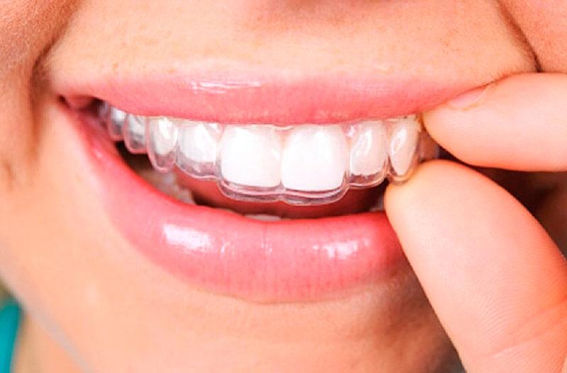 placa-dentária-02