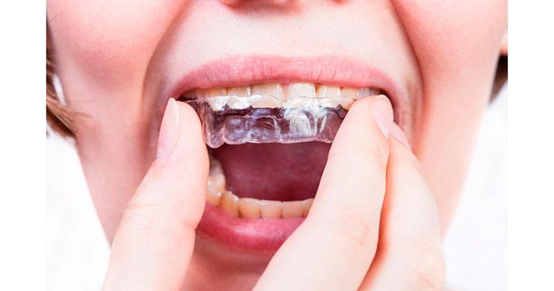 placa-dentária-03