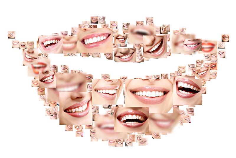 plano-dentário-que-cobre-implante-01