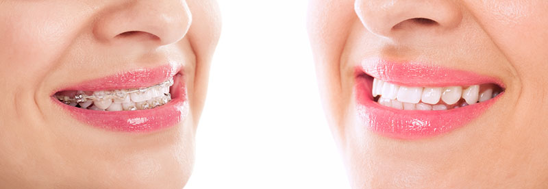 plano-odontológico-estético-02