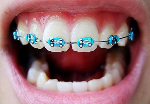 plano-odontológico-que-cobre-aparelho-e-manutenção-03