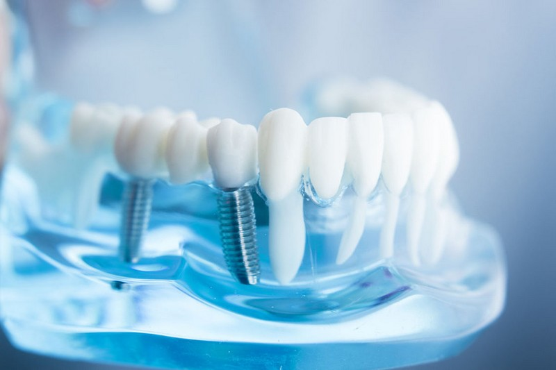 procedimento-de-implante-dentário-01
