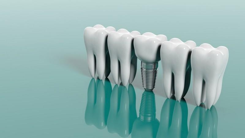 procedimento-de-implante-dentário-02