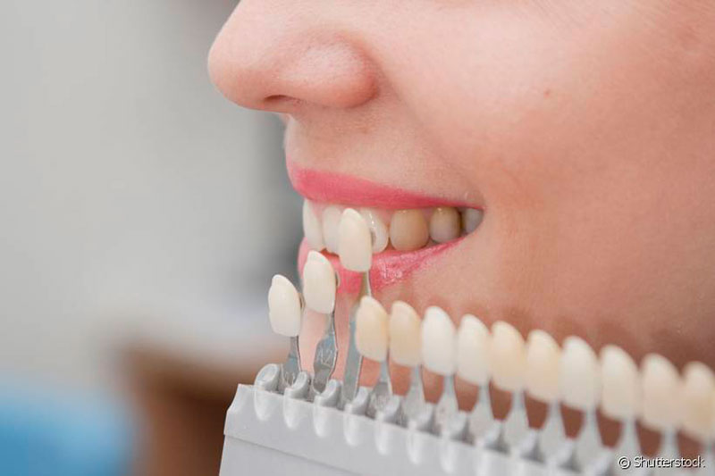 prótese-dentária-de-porcelana-01