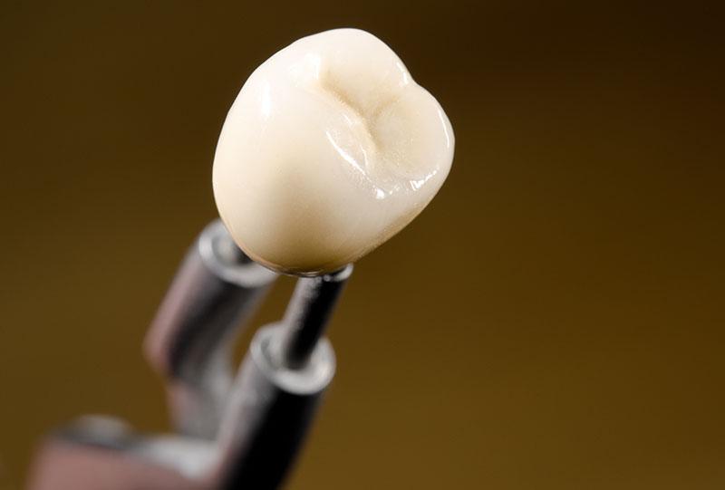 prótese-dentária-de-porcelana-03