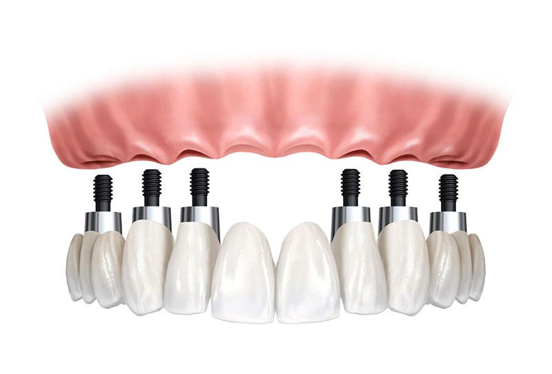 prótese-fixa-sobre-implante-01