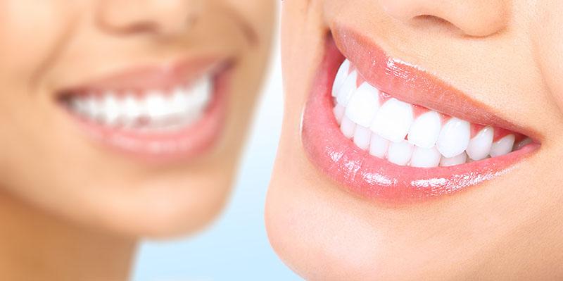 quanto-custa-implante-dentário-carga-imediata-02
