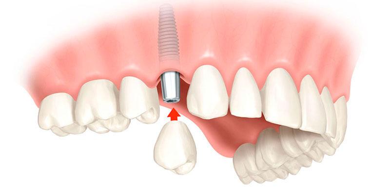 quanto-custa-implante-dentário-de-1-dente-03