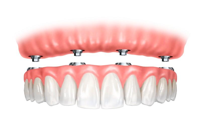 quanto-custa-implante-dentário-de-todos-os-dentes-02