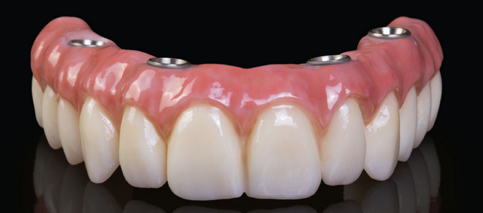 quanto-custa-implante-dentário-de-todos-os-dentes-03