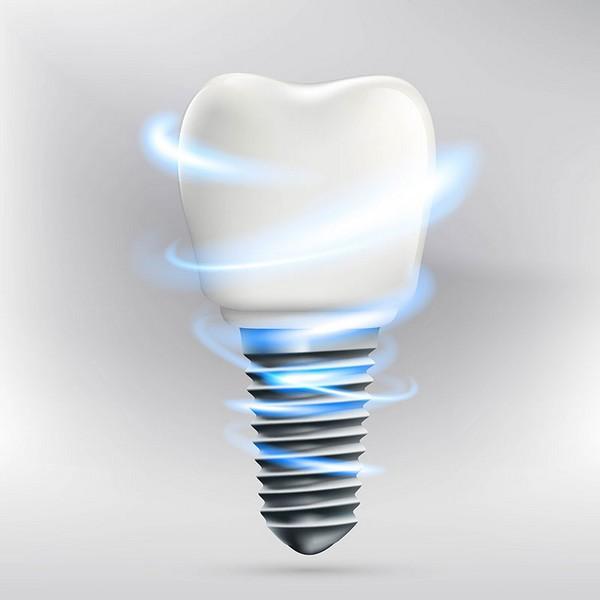 quanto-custa-para-fazer-um-implante-dentário-01